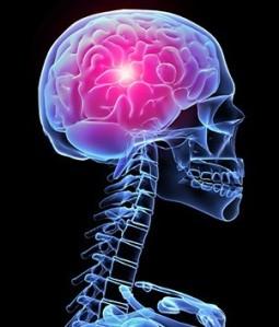 Cerebro 01