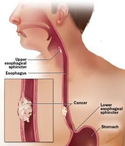 esophageal_cancer