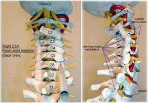Vértebras cervicales