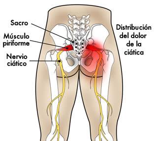 Como cura el dolor sobre la espalda la hernia