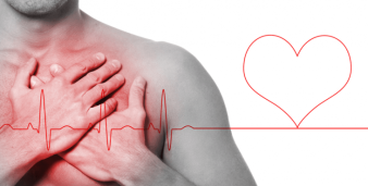 Miocardio.jpg