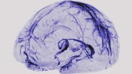 Cerebro dreno linfatico